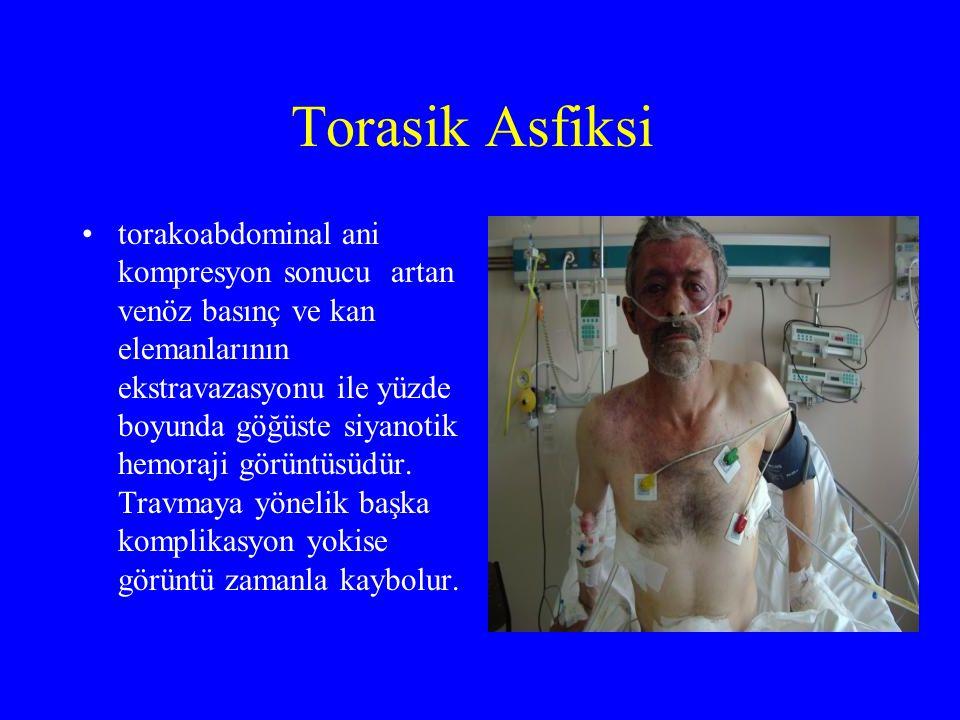 Torasik Asfiksi