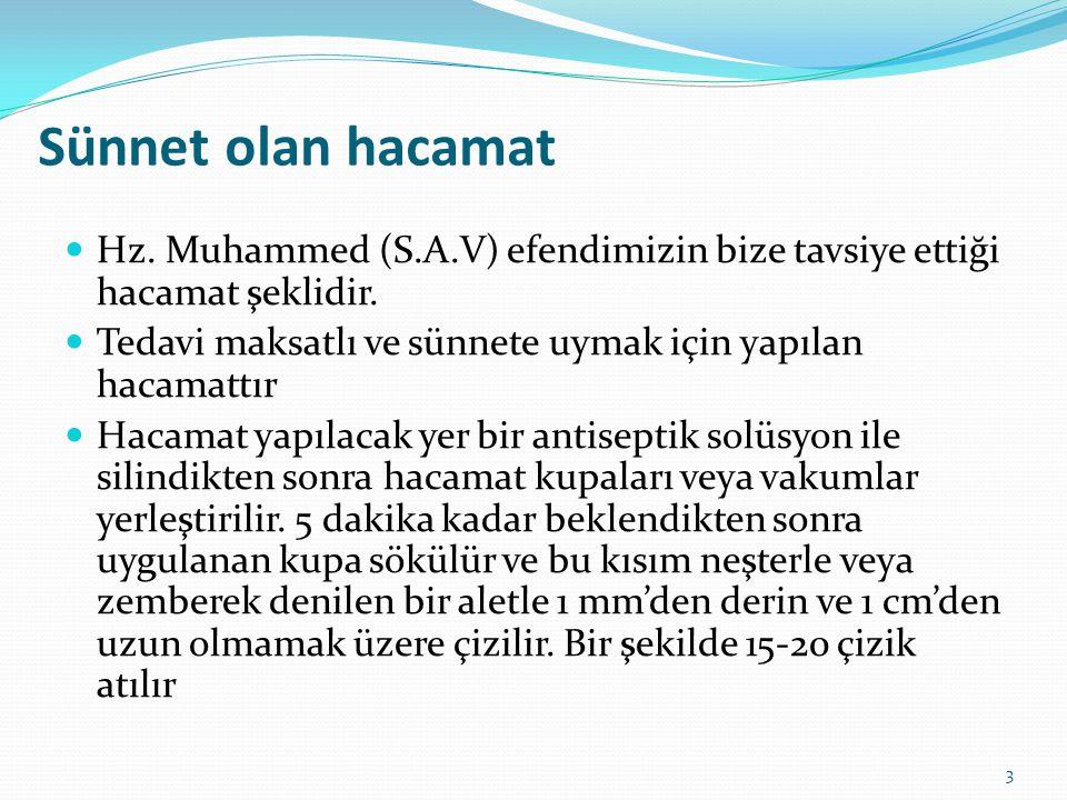 Sünnet olan hacamat Hz. Muhammed (S.A.V) efendimizin bize tavsiye ettiği hacamat şeklidir. Tedavi maksatlı ve sünnete uymak için yapılan hacamattır.
