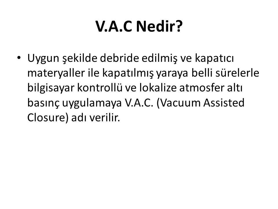 V.A.C Nedir