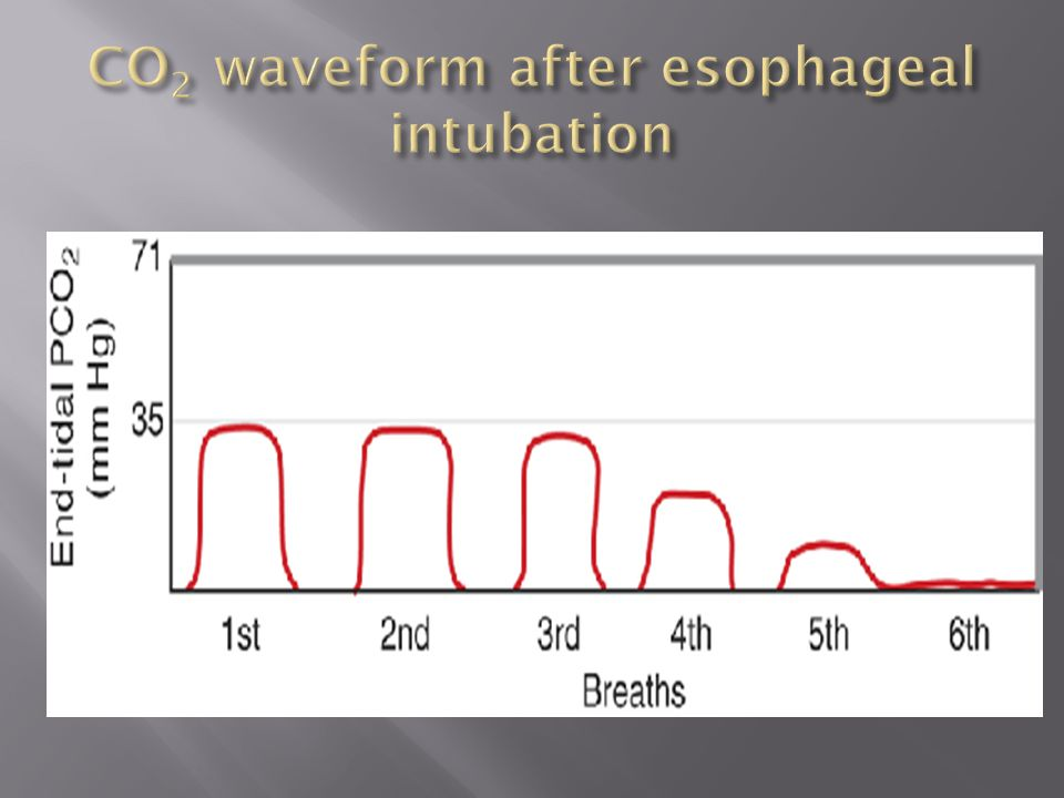 CO2 waveform after esophageal intubation