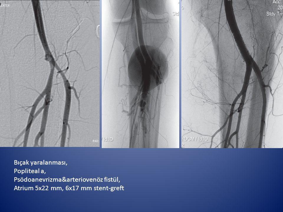 Bıçak yaralanması, Popliteal a, Psödoanevrizma&arteriovenöz fistül, Atrium 5x22 mm, 6x17 mm stent-greft.