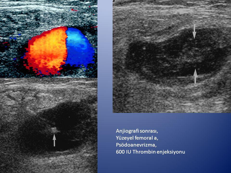 Anjiografi sonrası, Yüzeyel femoral a, Psödoanevrizma, 600 IU Thrombin enjeksiyonu