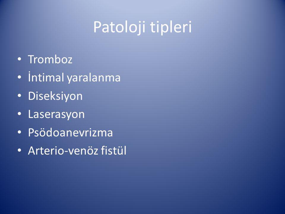 Patoloji tipleri Tromboz İntimal yaralanma Diseksiyon Laserasyon