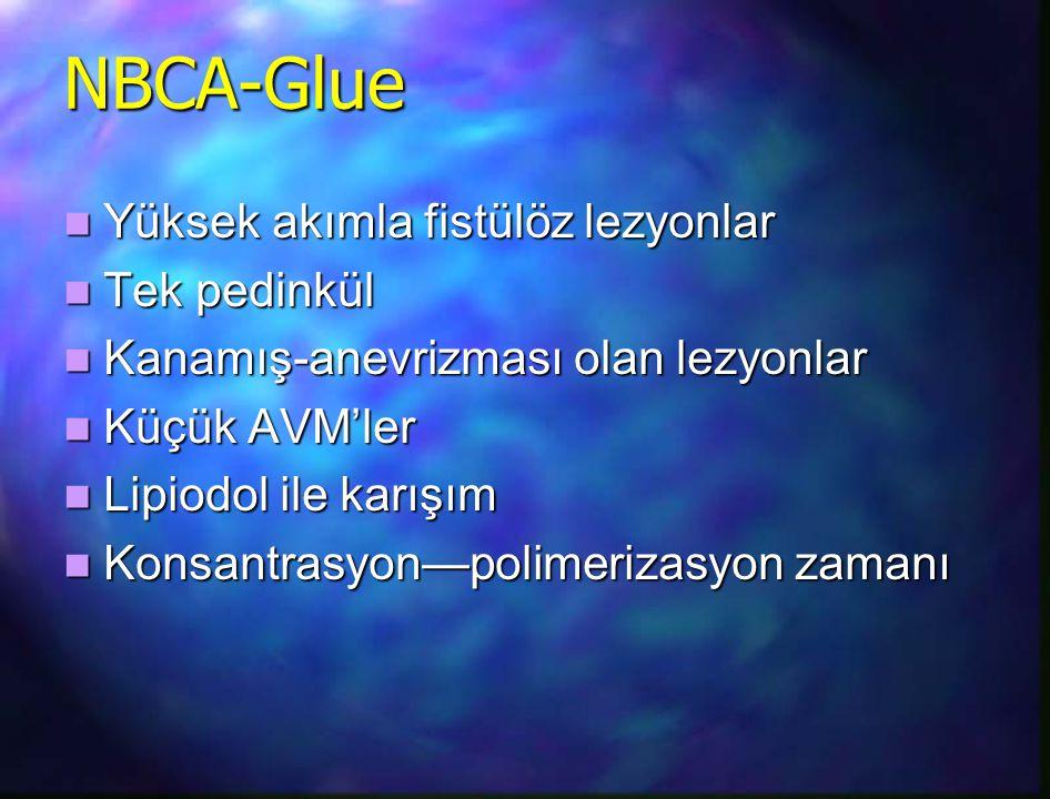 NBCA-Glue Yüksek akımla fistülöz lezyonlar Tek pedinkül