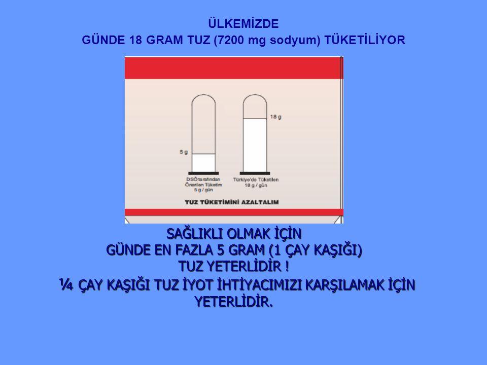 ÜLKEMİZDE GÜNDE 18 GRAM TUZ (7200 mg sodyum) TÜKETİLİYOR