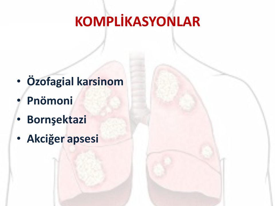 KOMPLİKASYONLAR Özofagial karsinom Pnömoni Bornşektazi Akciğer apsesi