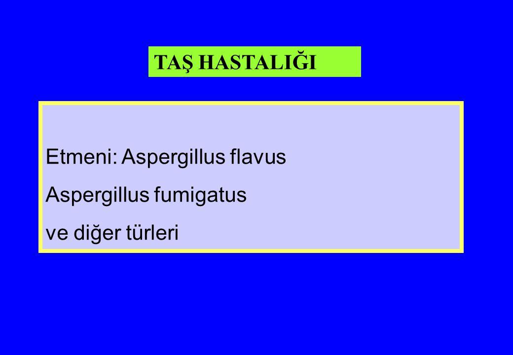 TAŞ HASTALIĞI Etmeni: Aspergillus flavus Aspergillus fumigatus ve diğer türleri