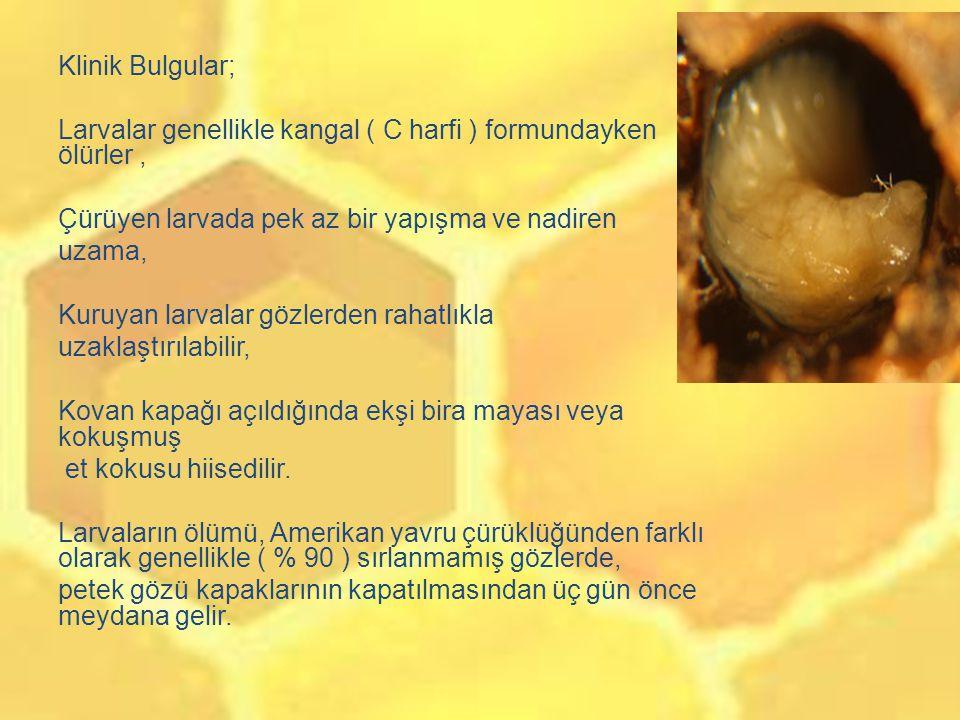 Klinik Bulgular; Larvalar genellikle kangal ( C harfi ) formundayken ölürler , Çürüyen larvada pek az bir yapışma ve nadiren uzama, Kuruyan larvalar gözlerden rahatlıkla uzaklaştırılabilir, Kovan kapağı açıldığında ekşi bira mayası veya kokuşmuş et kokusu hiisedilir.