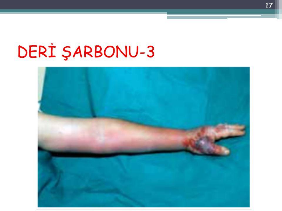 DERİ ŞARBONU-3