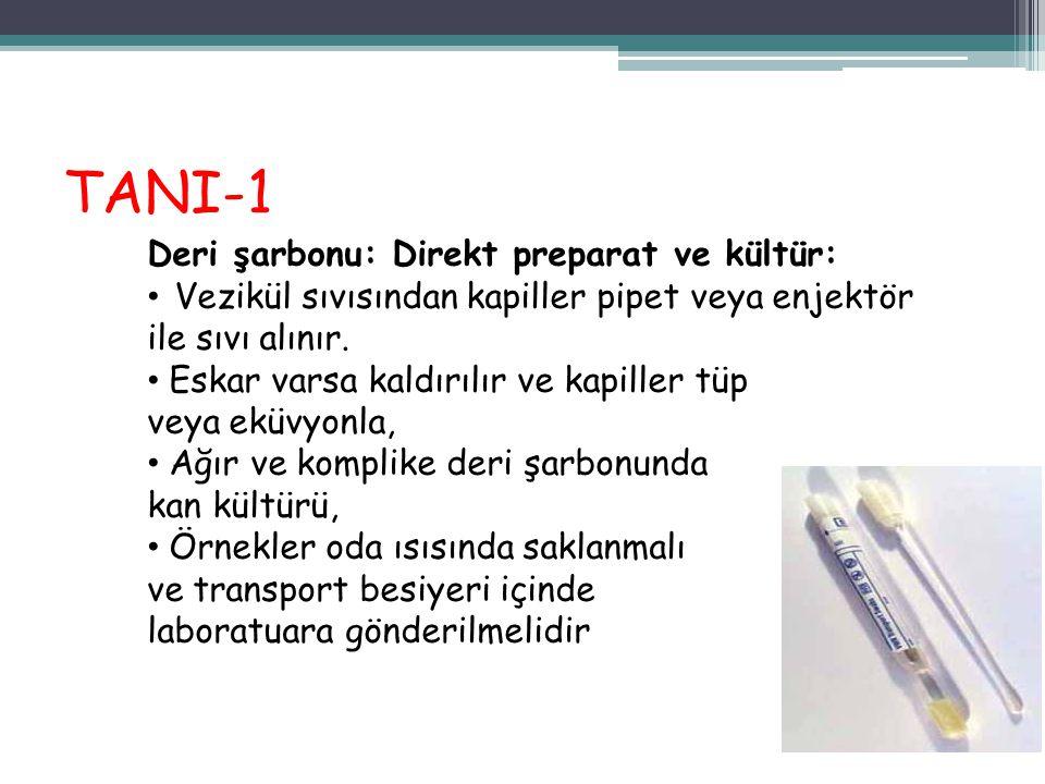 TANI-1 Deri şarbonu: Direkt preparat ve kültür: