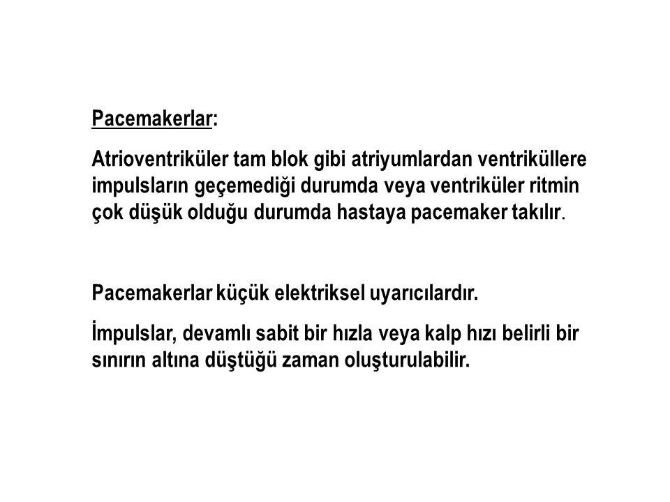 Pacemakerlar: