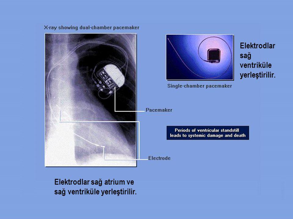 Elektrodlar sağ ventriküle yerleştirilir.