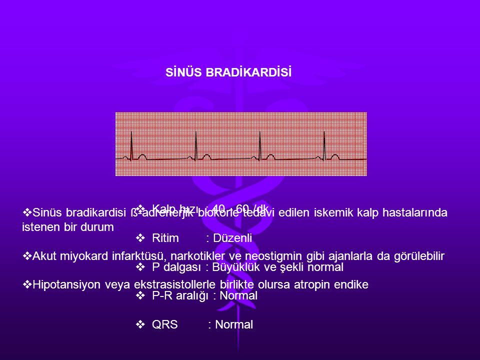 SİNÜS BRADİKARDİSİ Kalp hızı : 40 - 60 /dk. Ritim : Düzenli. P dalgası : Büyüklük ve şekli normal.