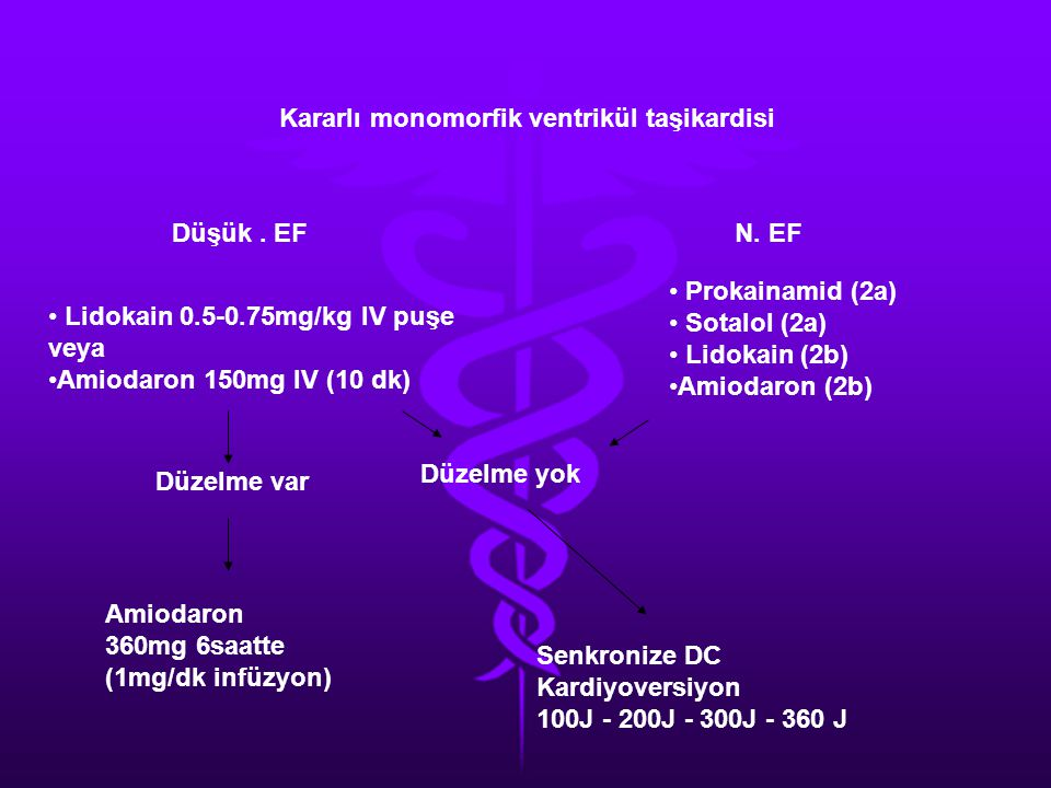 Kararlı monomorfik ventrikül taşikardisi