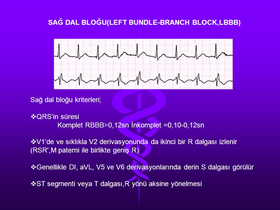 SAĞ DAL BLOĞU(LEFT BUNDLE-BRANCH BLOCK,LBBB)