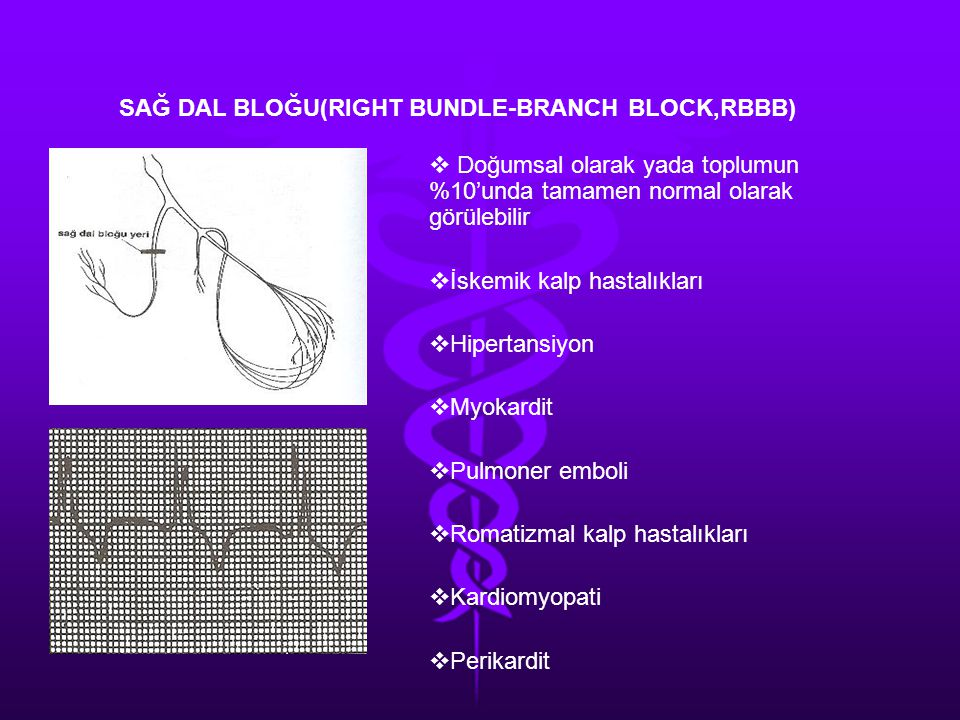 SAĞ DAL BLOĞU(RIGHT BUNDLE-BRANCH BLOCK,RBBB)