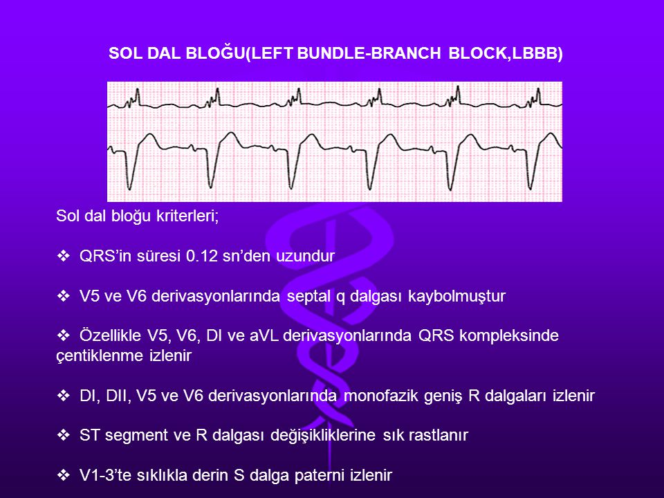 SOL DAL BLOĞU(LEFT BUNDLE-BRANCH BLOCK,LBBB)