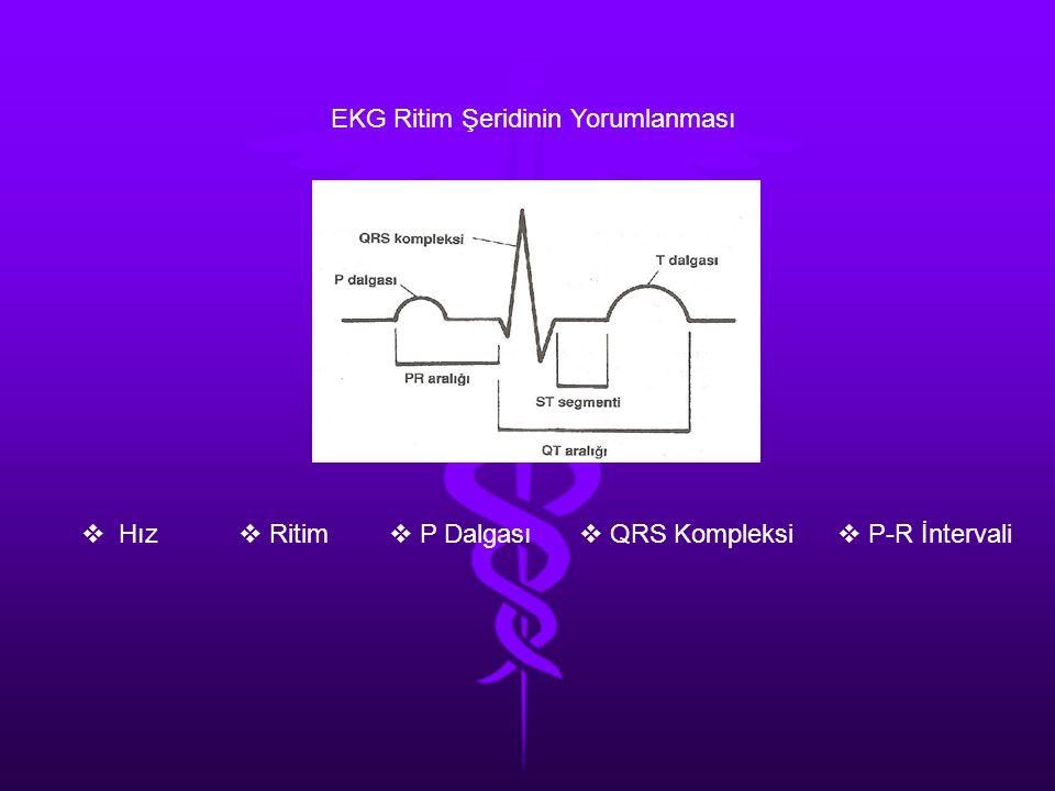 EKG Ritim Şeridinin Yorumlanması