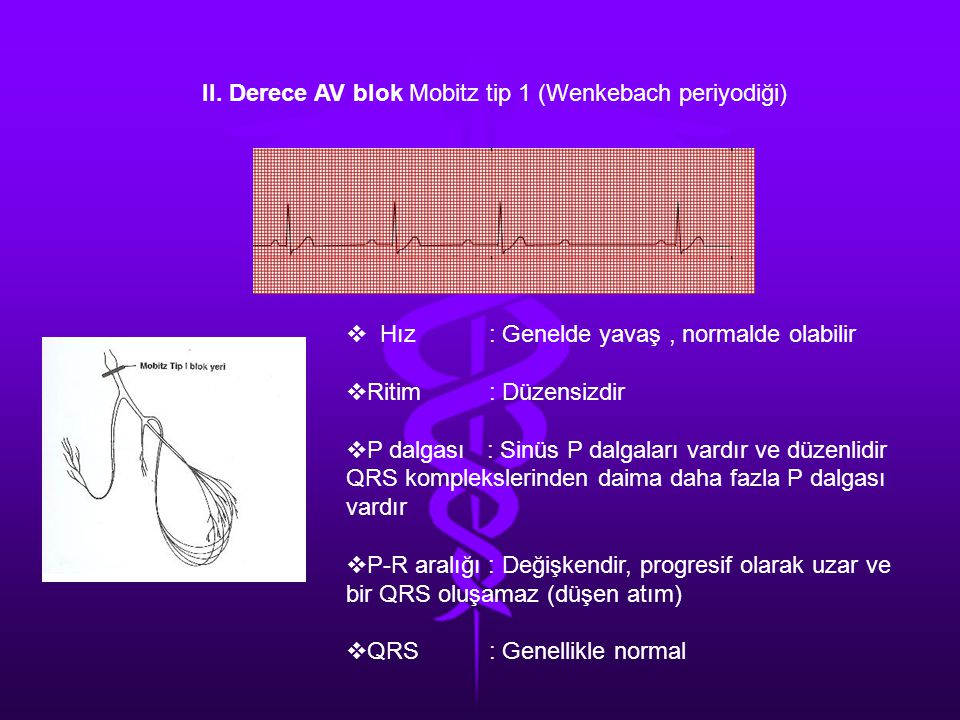 II. Derece AV blok Mobitz tip 1 (Wenkebach periyodiği)