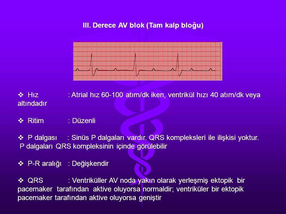 III. Derece AV blok (Tam kalp bloğu)