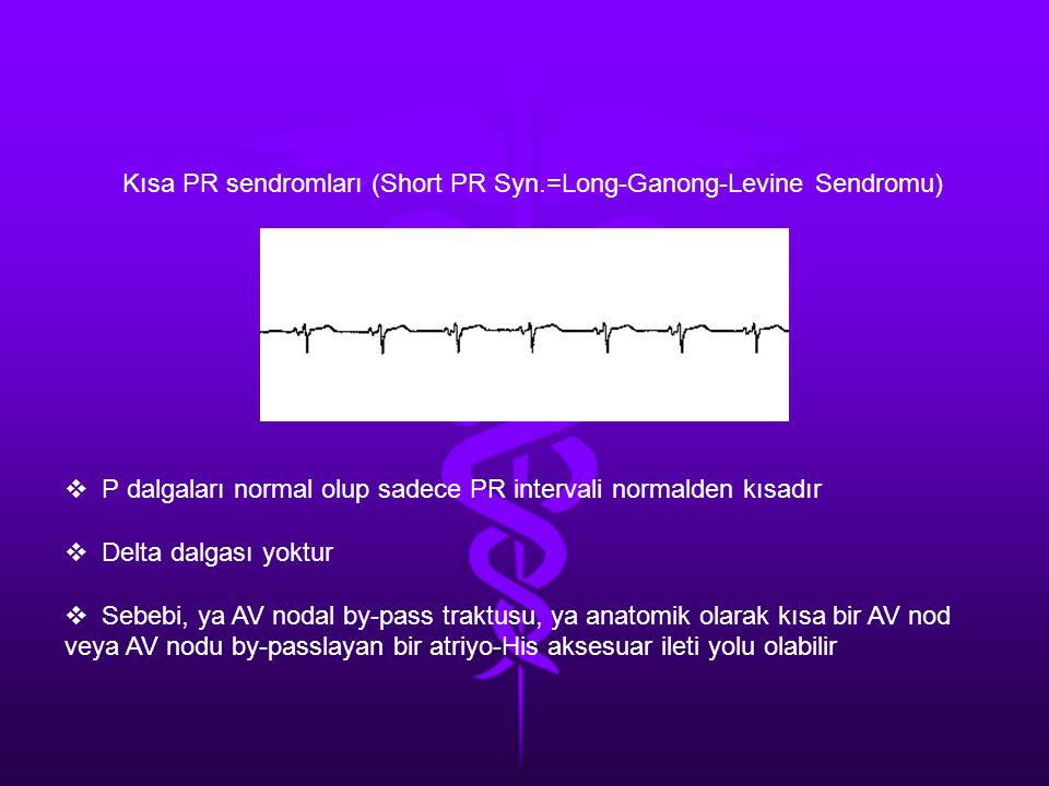 Kısa PR sendromları (Short PR Syn.=Long-Ganong-Levine Sendromu)