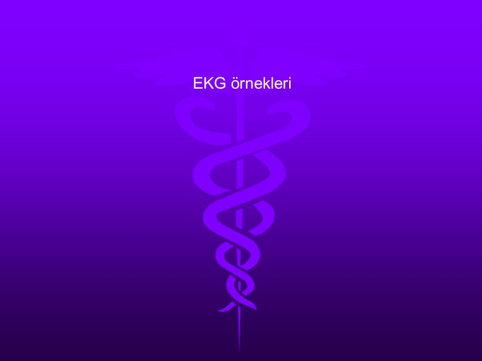 EKG örnekleri