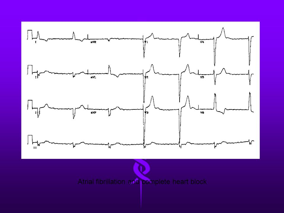 Atrial fibrillation and complete heart block