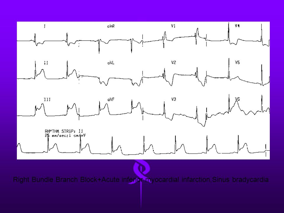 Right Bundle Branch Block+Acute inferior myocardial infarction,Sinus bradycardia