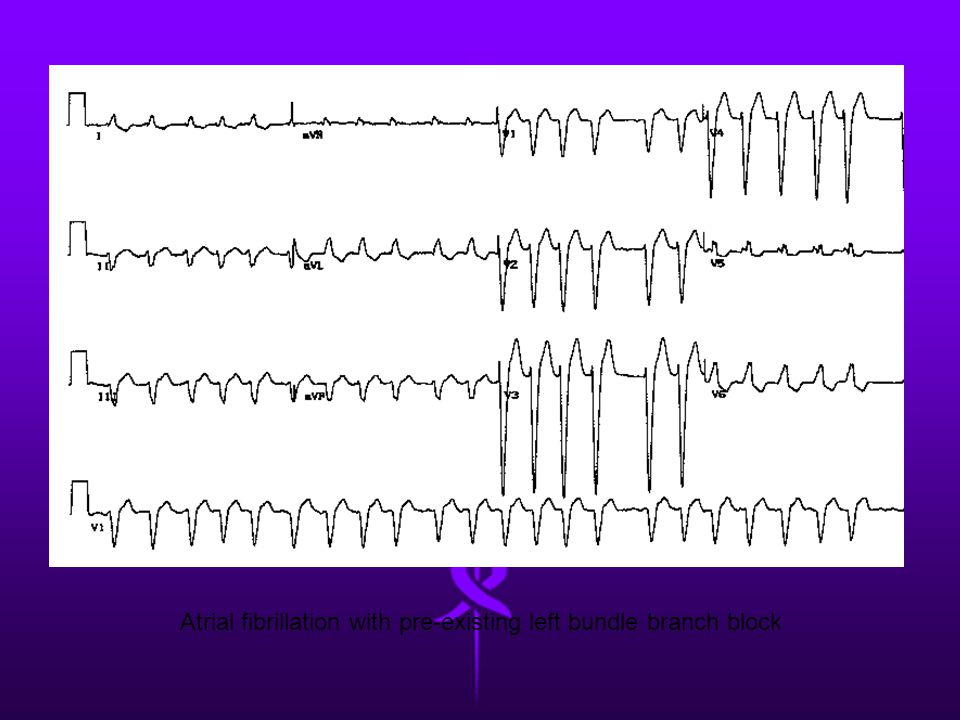 Atrial fibrillation with pre-existing left bundle branch block