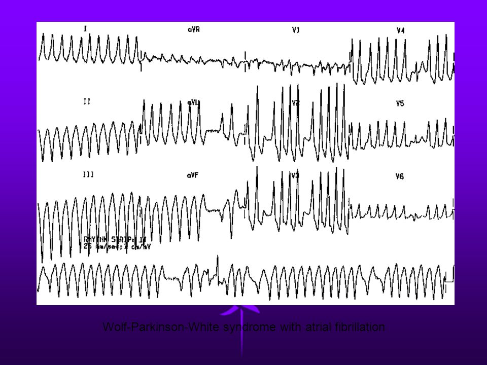 Wolf-Parkinson-White syndrome with atrial fibrillation