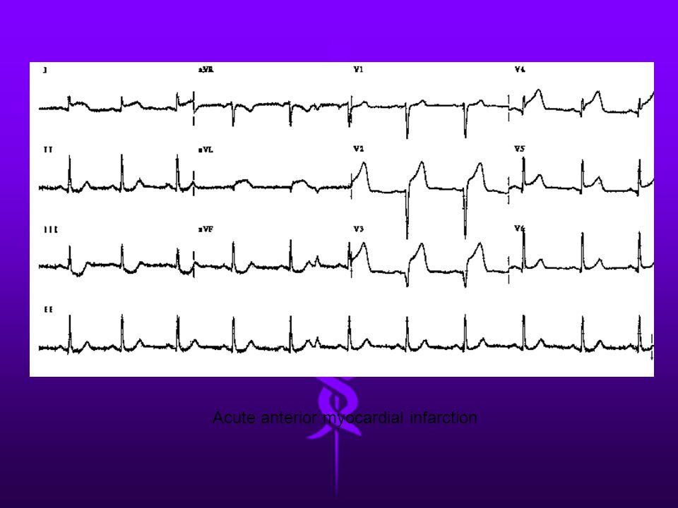 Acute anterior myocardial infarction