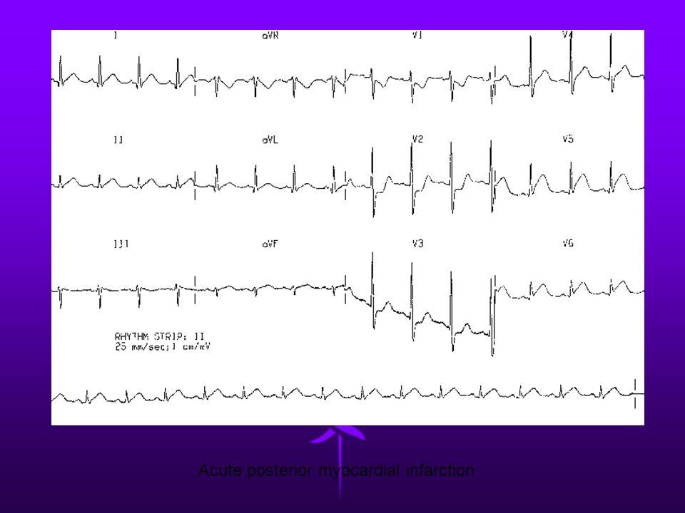 Acute posterior myocardial infarction