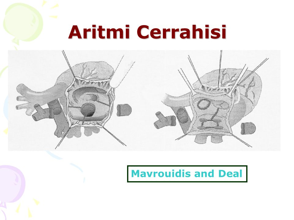 Aritmi Cerrahisi Mavrouidis and Deal
