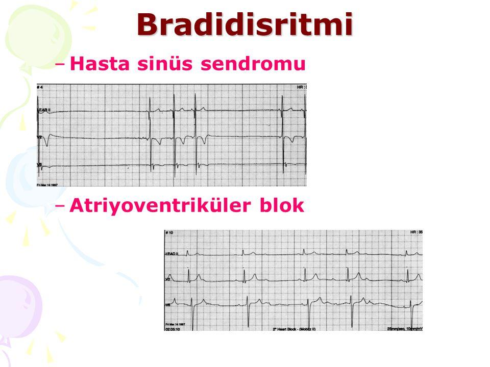 Bradidisritmi Hasta sinüs sendromu Atriyoventriküler blok