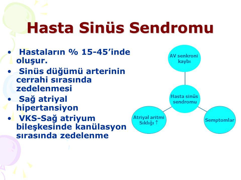 Hasta Sinüs Sendromu Hastaların % 15-45'inde oluşur.