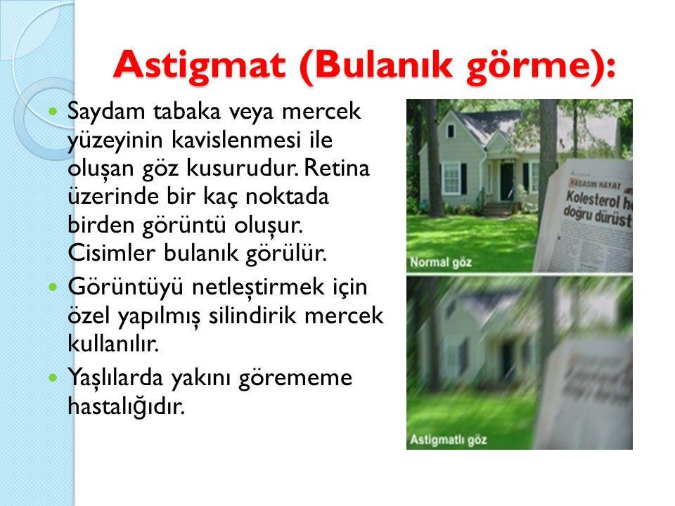 Astigmat (Bulanık görme):