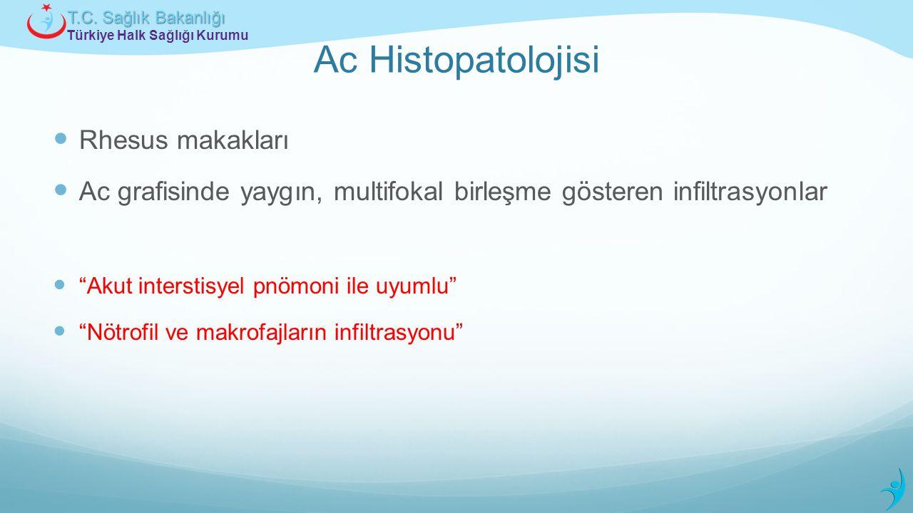 Ac Histopatolojisi Rhesus makakları
