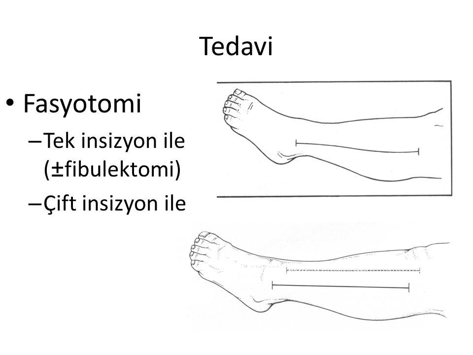 Tedavi Fasyotomi Tek insizyon ile (±fibulektomi) Çift insizyon ile