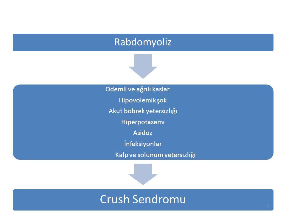 Crush Sendromu Rabdomyoliz Ödemli ve ağrılı kaslar Hipovolemik şok