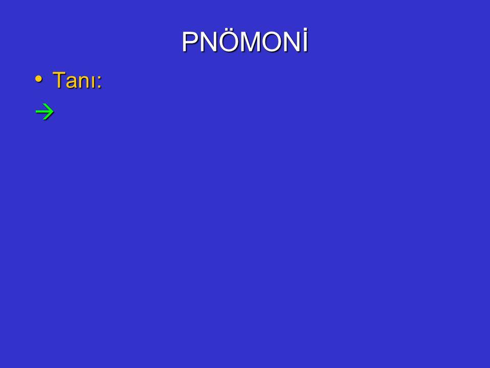 PNÖMONİ Tanı: 