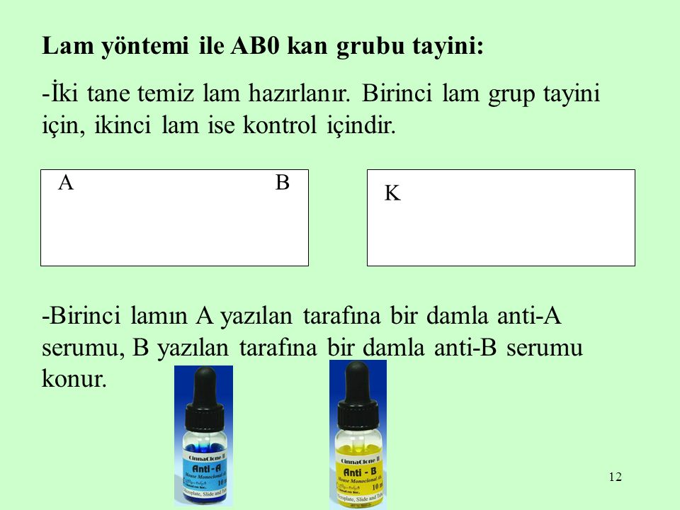 Lam yöntemi ile AB0 kan grubu tayini:
