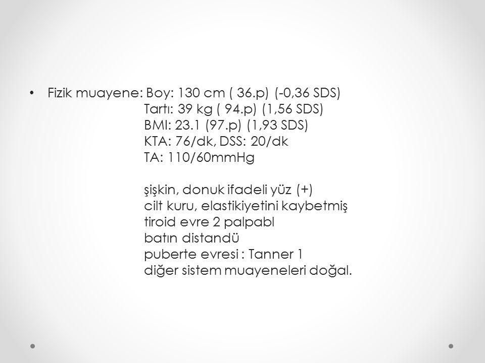 Fizik muayene: Boy: 130 cm ( 36.p) (-0,36 SDS)