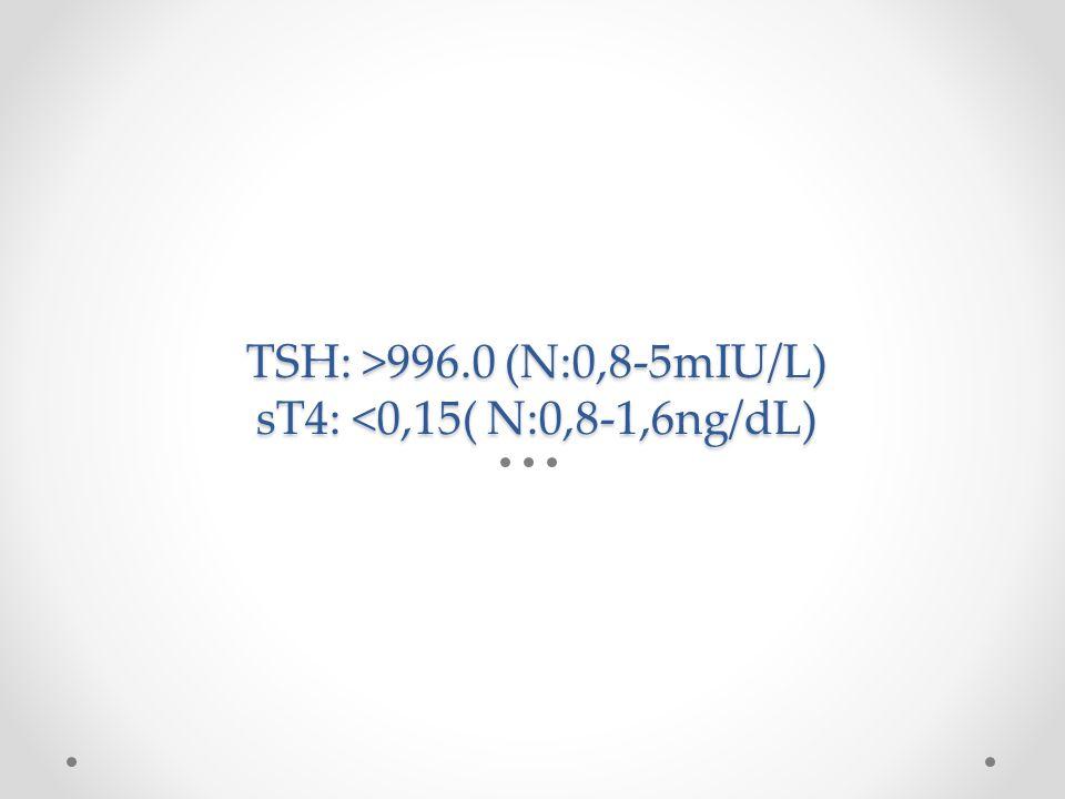 TSH: >996.0 (N:0,8-5mIU/L) sT4: <0,15( N:0,8-1,6ng/dL)