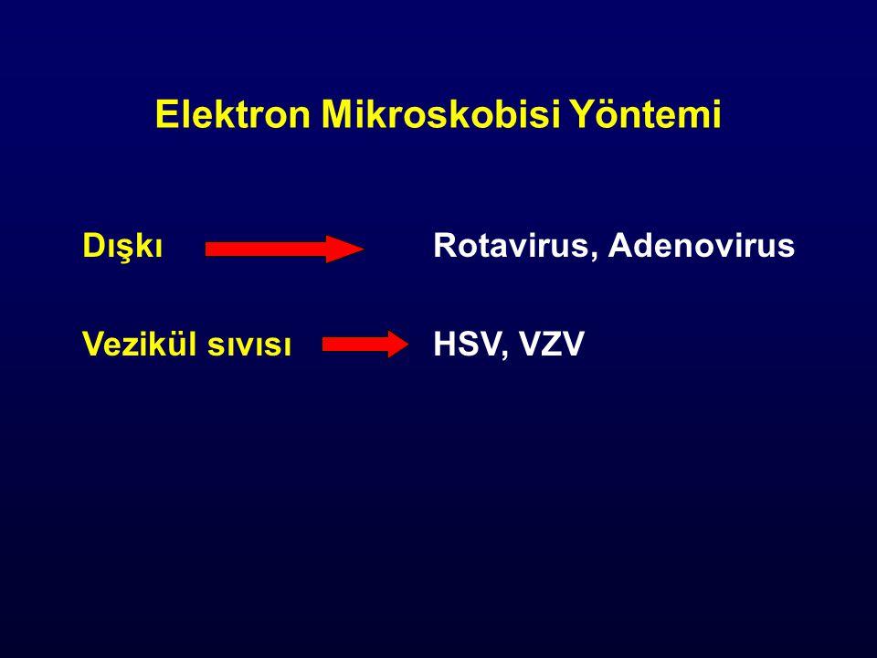 Elektron Mikroskobisi Yöntemi