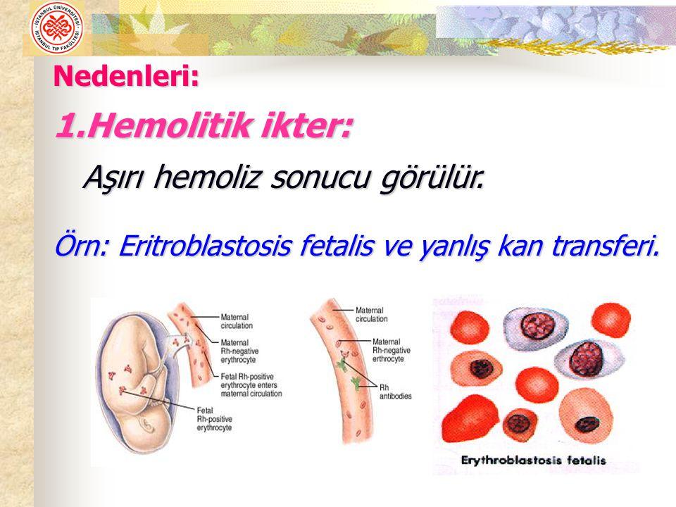 Hemolitik ikter: Aşırı hemoliz sonucu görülür. Nedenleri: