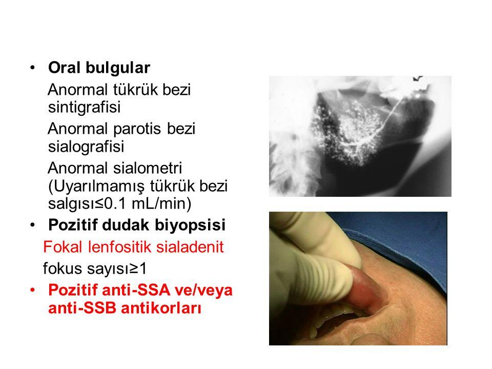 Oral bulgular Anormal tükrük bezi sintigrafisi. Anormal parotis bezi sialografisi. Anormal sialometri (Uyarılmamış tükrük bezi salgısı≤0.1 mL/min)