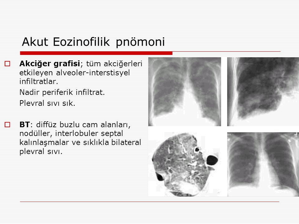 Akut Eozinofilik pnömoni