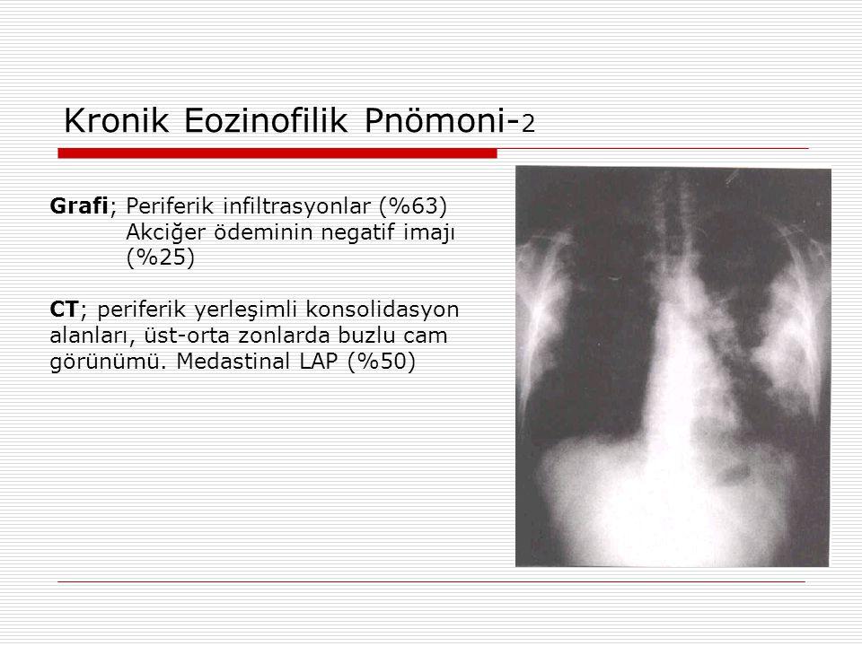 Kronik Eozinofilik Pnömoni-2