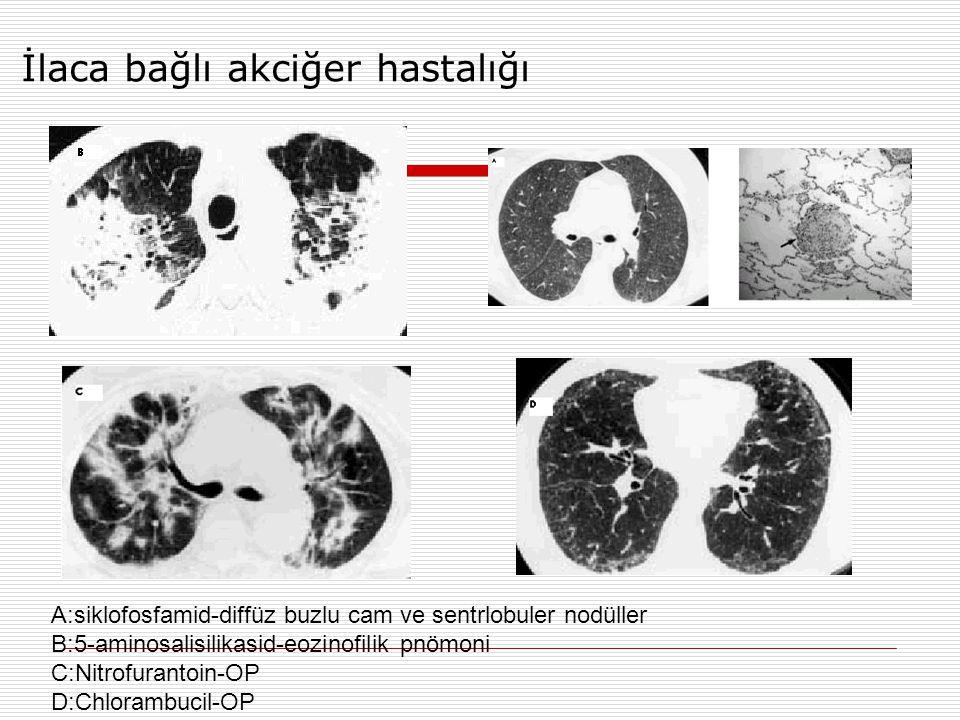 İlaca bağlı akciğer hastalığı