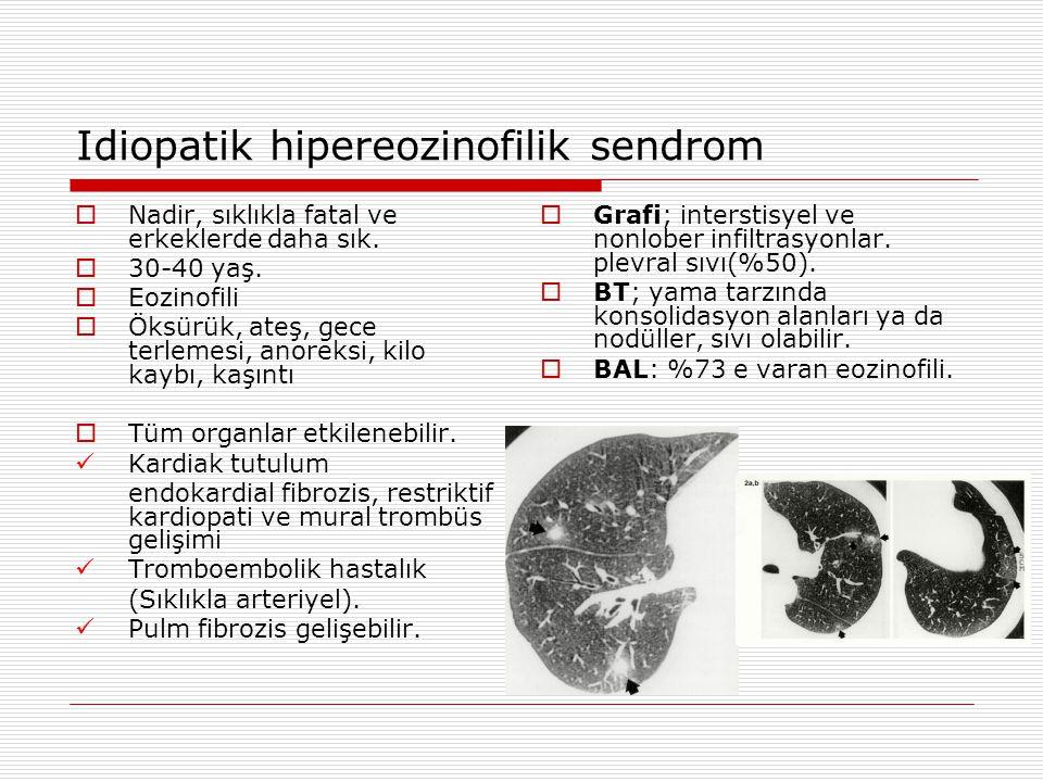 Idiopatik hipereozinofilik sendrom